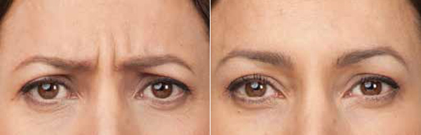 Botox Brooklyn Wrinkle Reduction